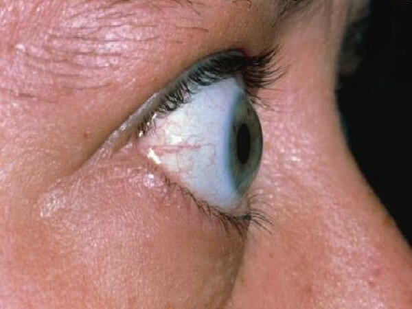 Лечение тиреотоксикоза Эндонорм